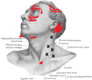 Referral pain pattern  headaches from sternocleidomastoid