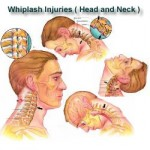 whiplash pain