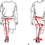 knee-rolling-in-___-internal-femoral-rotation