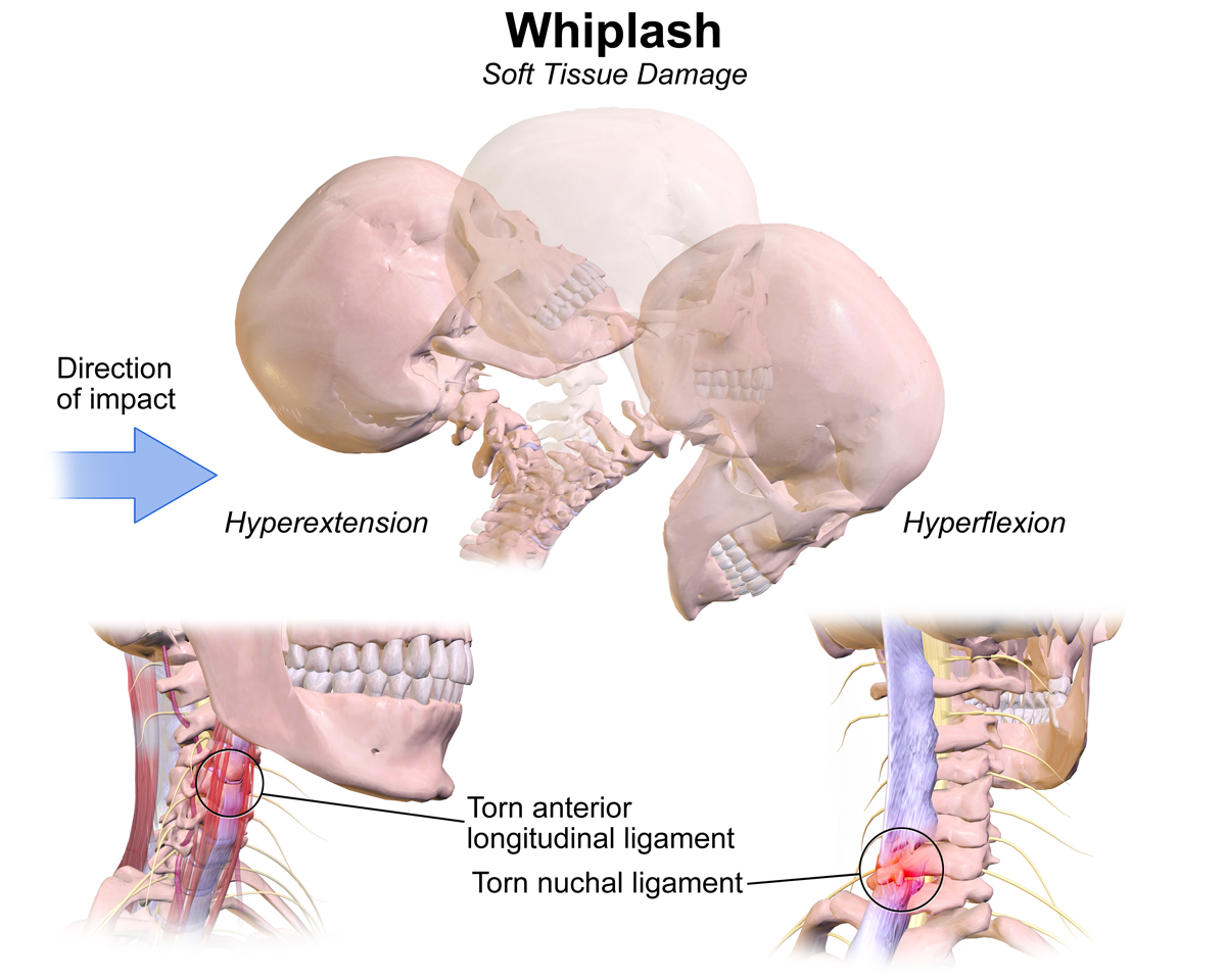 Do You Have Whiplash Pain Want To Get Better You Can